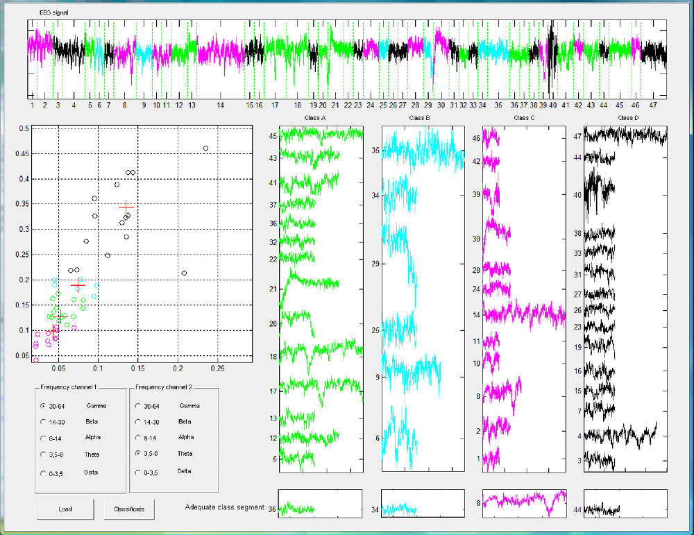 Feature analysis of EEG signals using SOM